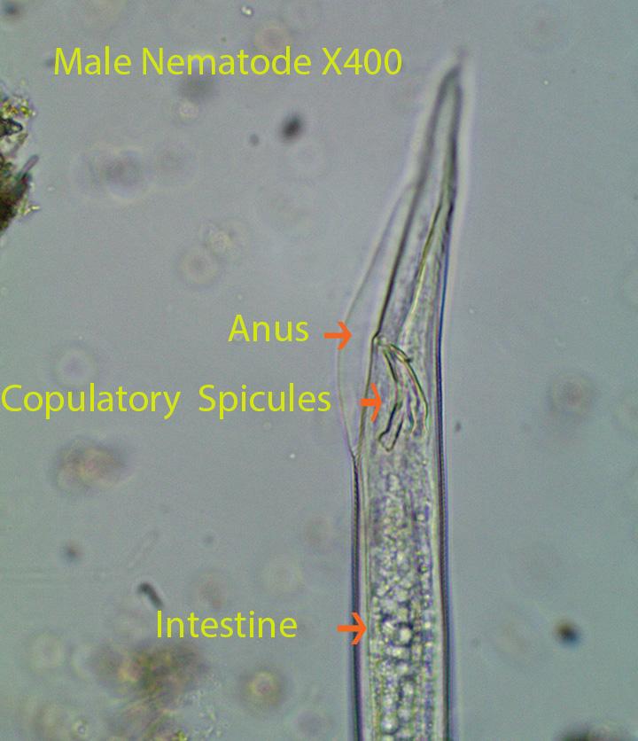 Nematodes, Tartigrades and Annelids | Bog Invertebrates: Protozoans ...